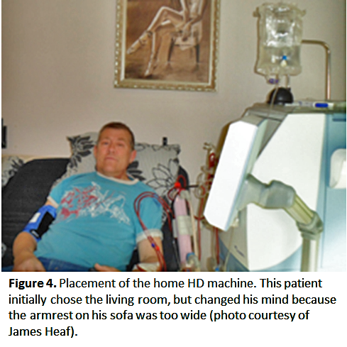 8  Home Hemodialysis: Infrastructure, Water, and Machines in